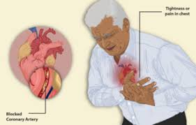 Angina Pectoris: 4 basic types